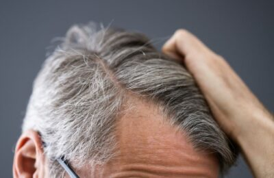 Perdita di capelli: Prevenzione, cause e rimedi
