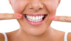 L'importanza dei denti bianchi: Perché è importante avere denti bianchi?