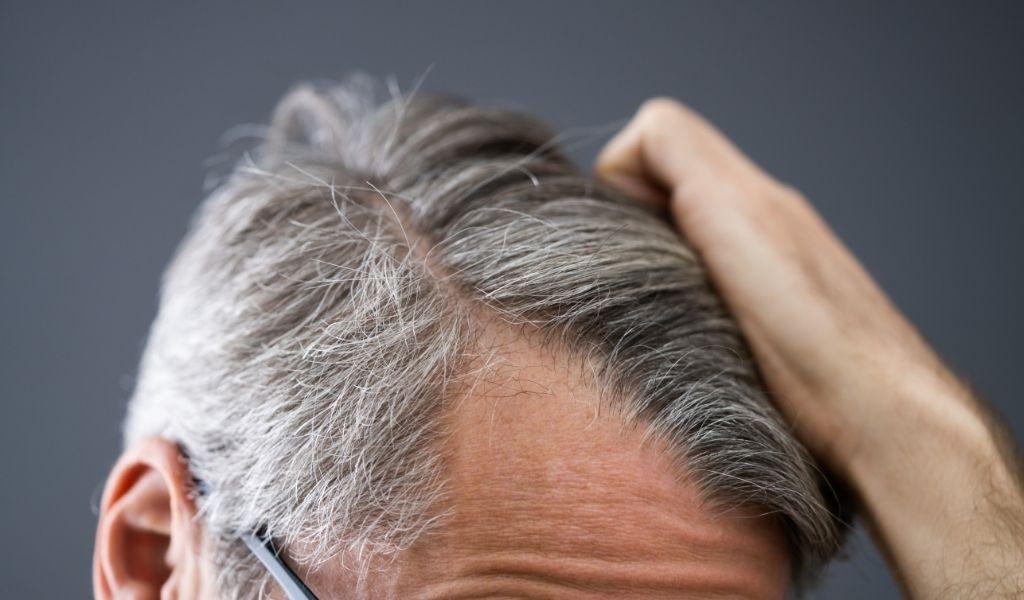 Perdita di capelli: Prevenzione, cause e rimedi   Article ...