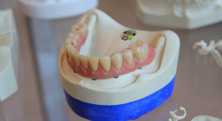 dentiere roma